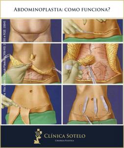 abdominoplastia como funciona