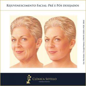 lifting facial antes e depois