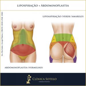 abdominoplastia com lipoaspiração