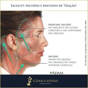 facelift procedimento cicatrizes