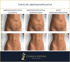tipos abdominoplastia