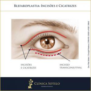 blefaroplastia incisões e cicatrizes