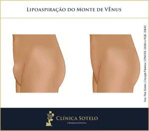 lipoaspiração do monte de vênus