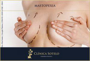 mastopexia