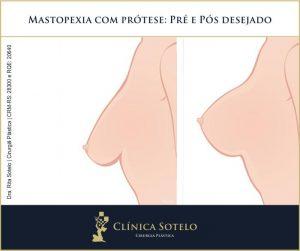 mastopexia com protese