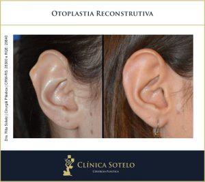 otoplastia reconstrução de orelhas