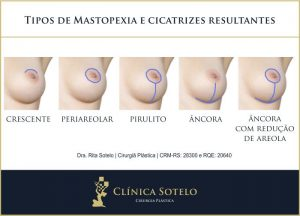 tipos de mastopexia cicatriz da mastopexia